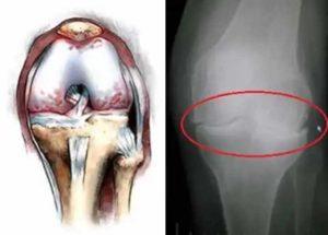 Схема и рентген артроза