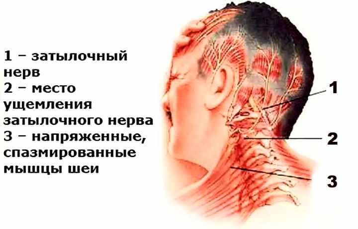 Соматические боли в области шеи