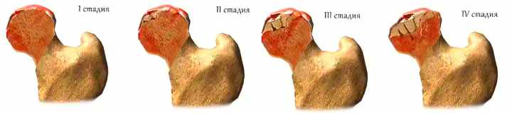 Степень разрушения при коксартрозе