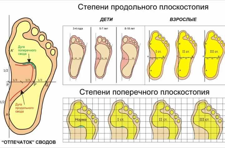 Рисунок степеней болезни плоскостопия