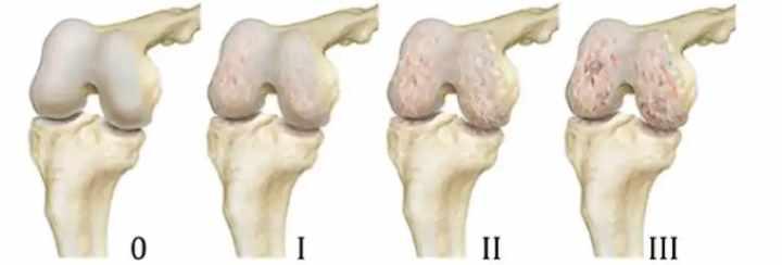 Истирание коленного сустава