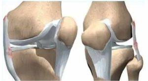 Схема изображения поврежденных связок в колене