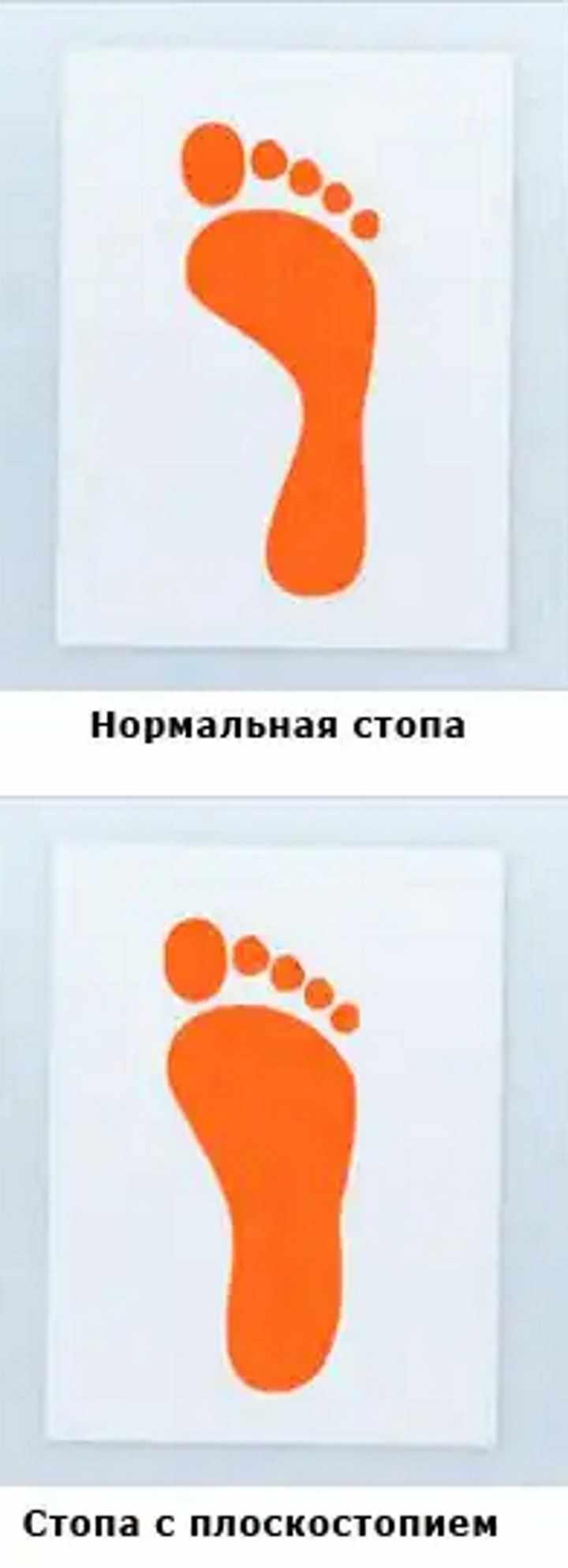 Тест краской на проверку плоскостопия