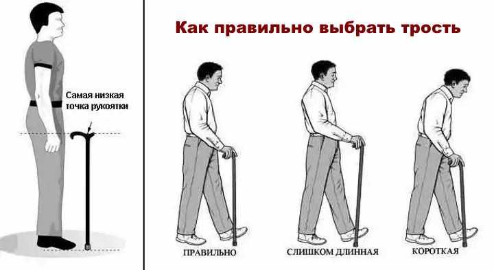 Как выбрать трость