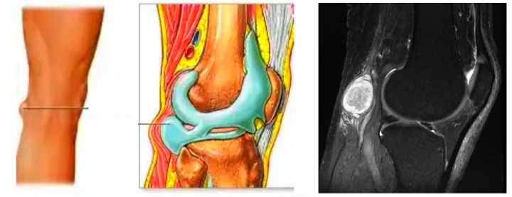 Рентген кисты бейкера
