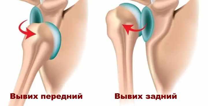 Рисунок вывиха плечевого сустава