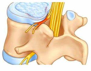 Схема воспаления нервного окончания