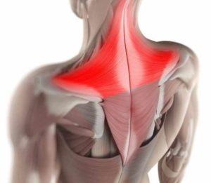 Локализация боли в шее и плече