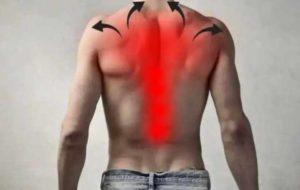 Локализация боли в плечах и спине