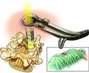 Лечение грыжи позвоночника - микродискэктомия
