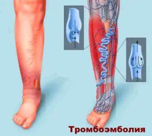 Последствия эндоскопии тазобедренного сустава