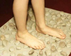Лечение плоскостопия - камешки