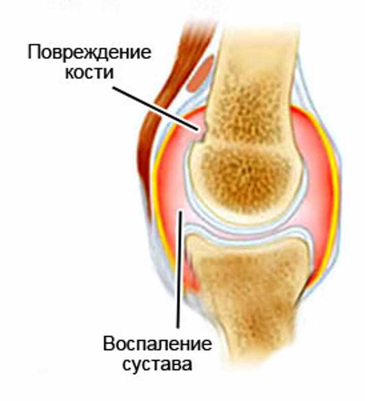 Строение сустава при артрите