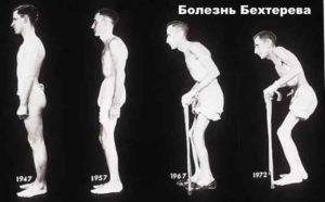 Изображение - Сильный хруст в суставах причины bolezn-Behtereva-300x186