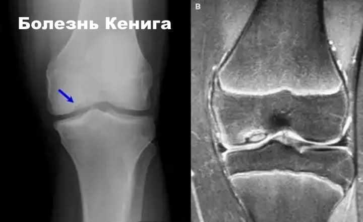 Рентгенограмма болезни Кенига