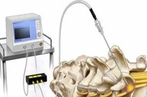 Лечение грыжи позвоночника - деструкция фасеточных нервов
