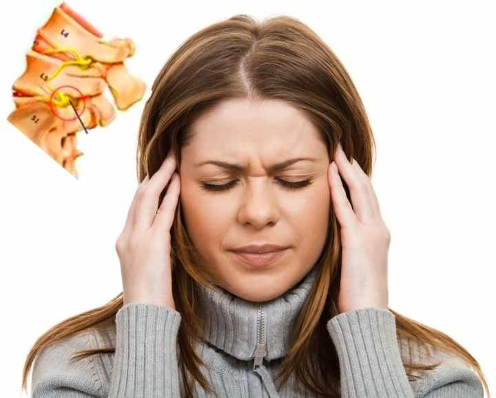 Таблетки при шейном остеохондрозе и головной боли