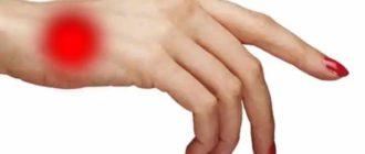 Если болит кисть руки