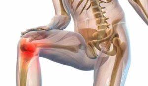 Острое воспаление колена