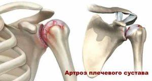 Болезни плечевого сустава - артроз