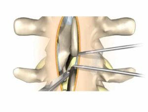 Лечение грыжи позвоночника - ламинэктомия