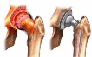 Рисунок показания к эндоскопии тазобедренного сустава