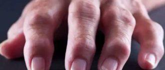 Пораженные суставы рук