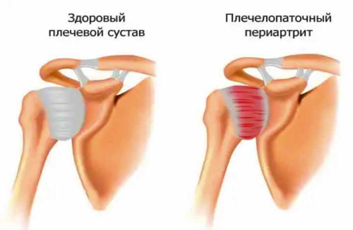 Строение паталогии плечевого сустава