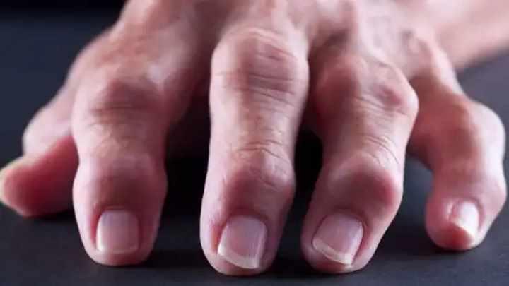 Полиартрит пальцев рук - особенности причины симптоматика и лечение