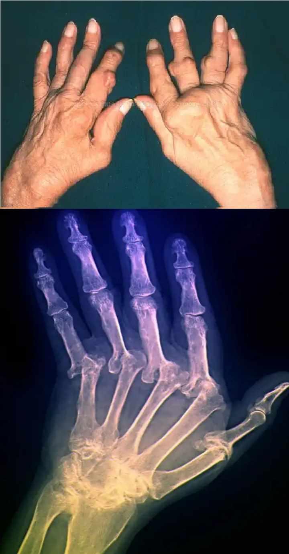 Рентгенограмма пальцев рук