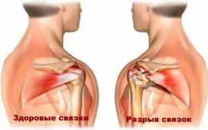 Болезни плечевого сустава - разрыв связок