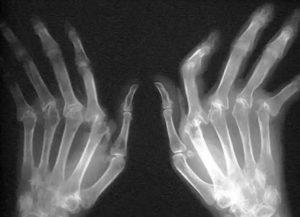 Рентгенограмма при артрите
