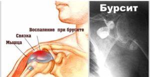 Болезни плечевого сустава - бурсит