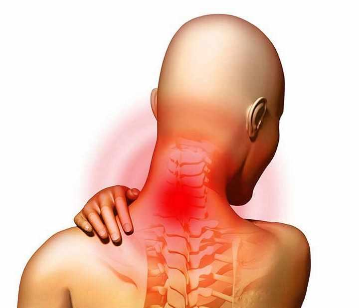 Какие признаки при остеохондрозе шейного отдела позвоночника