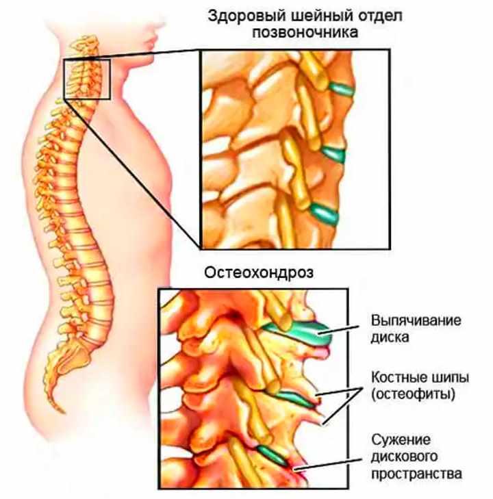 shejnyj-osteohondroz_stroenie-pozvonkov