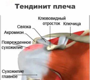 Болезни плечевого сустава - тендинит