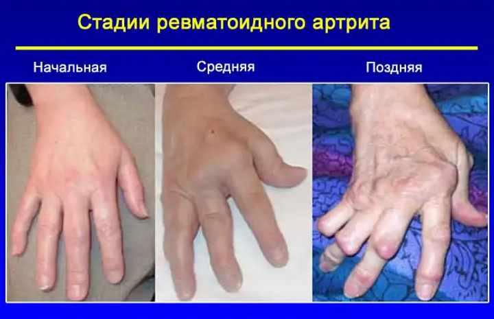 Что такое артрит ревматоидный