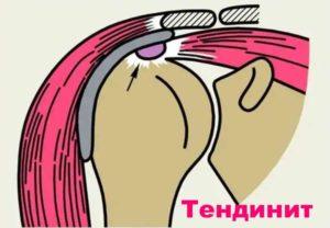 Заболевание тендинита