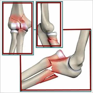 Изображение - Болят суставы локтей лечение travma-loktya-300x300