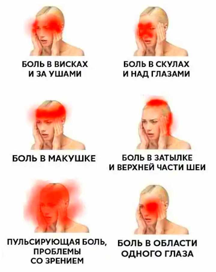 Разновидности боли