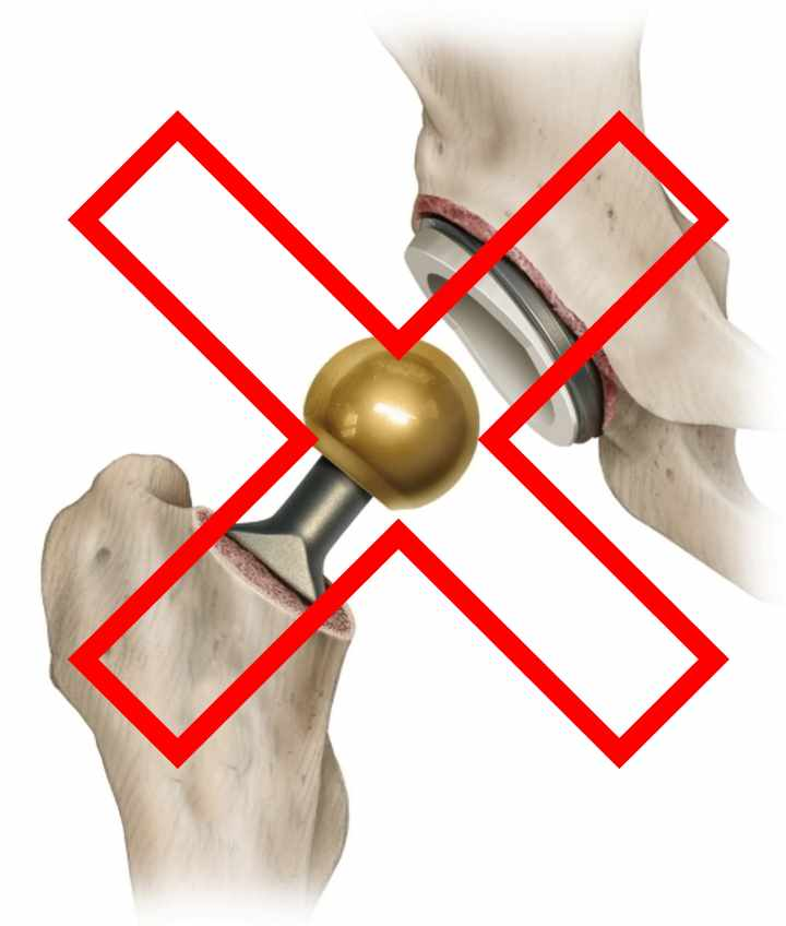 Запрещена эндоскопия тазобедренного сустава
