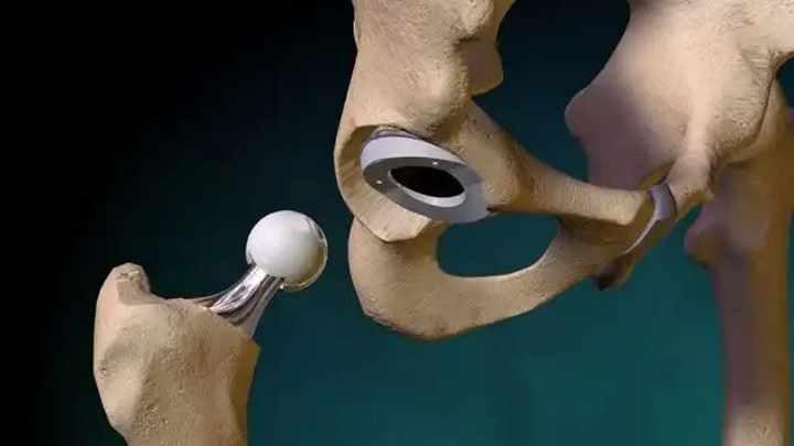 Все о операции о замене тазобедренного сустава