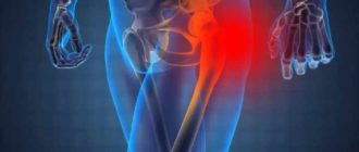 Место боли защемления нерва