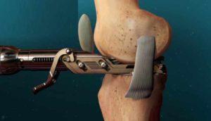 Лечение артрита операцией