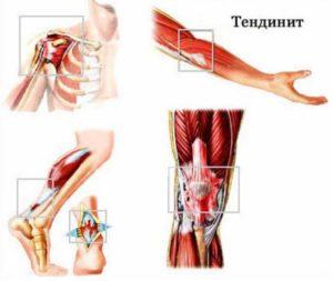 Структура образования воспаления сухожилий