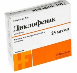 Лечение гонартроза