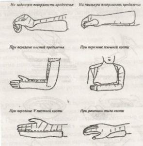 Схема гипсования рук