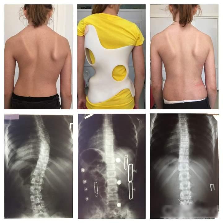 Снимки рентгена до и после корсета шено
