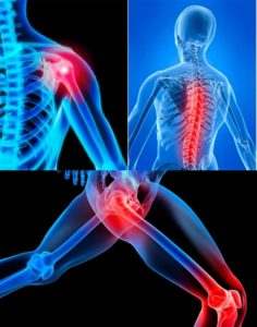Где могут болеть суставы