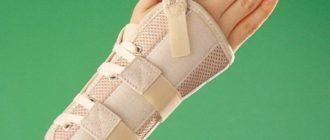 Аналог гипса на руку